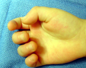 Trigger finger in children most likely involves the thumb